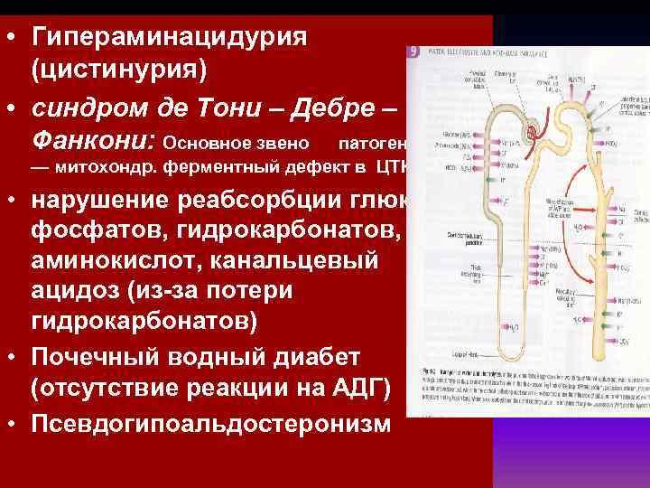 • Гипераминацидурия  (цистинурия) • синдром де Тони – Дебре –  Фанкони: