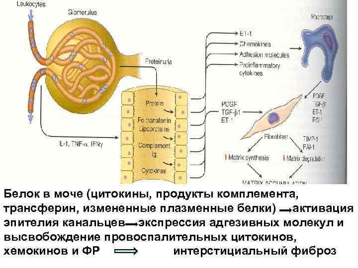 Белок в моче (цитокины, продукты комплемента,  трансферин, измененные плазменные белки) активация эпителия канальцев