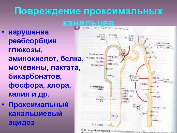 Повреждение проксимальных   канальцев • нарушение  реабсорбции  глюкозы, аминокислот,