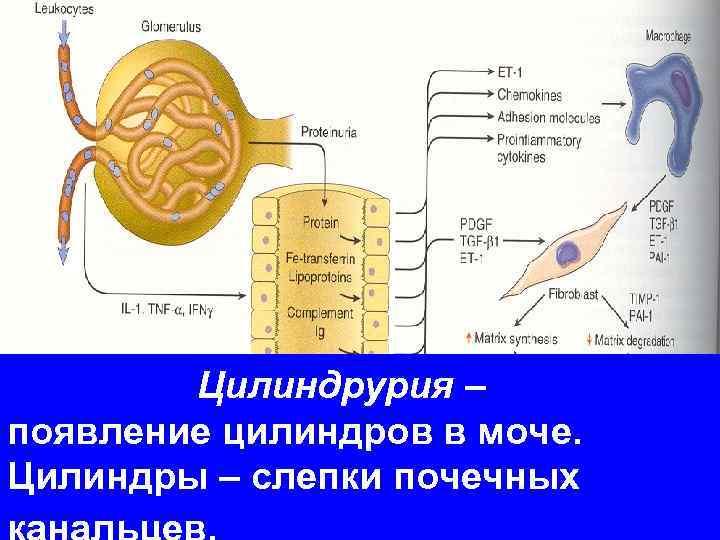 Цилиндрурия –    появление цилиндров в моче.  Цилиндры –