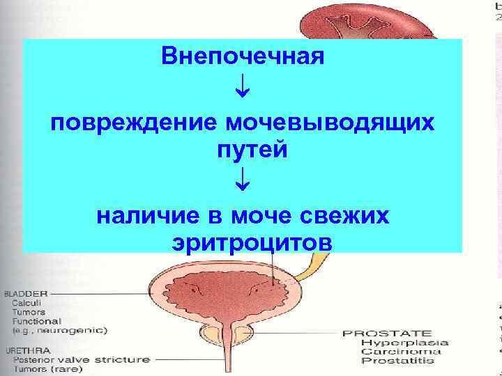 Внепочечная    повреждение мочевыводящих   путей