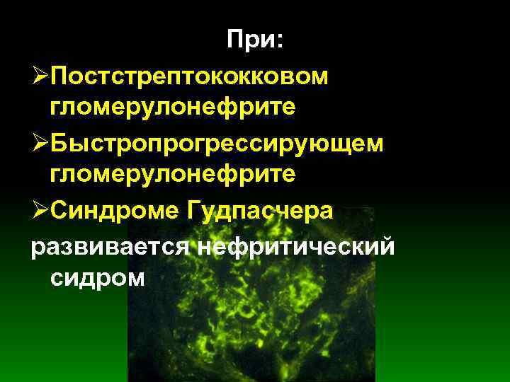При: ØПостстрептококковом  гломерулонефрите ØБыстропрогрессирующем  гломерулонефрите ØСиндроме Гудпасчера развивается нефритический