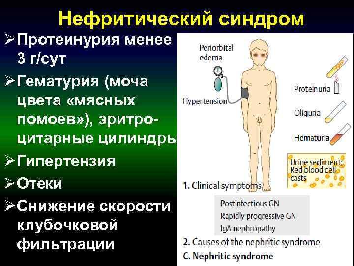 Нефритический синдром Ø Протеинурия менее 3 г/сут Ø Гематурия (моча  цвета «мясных
