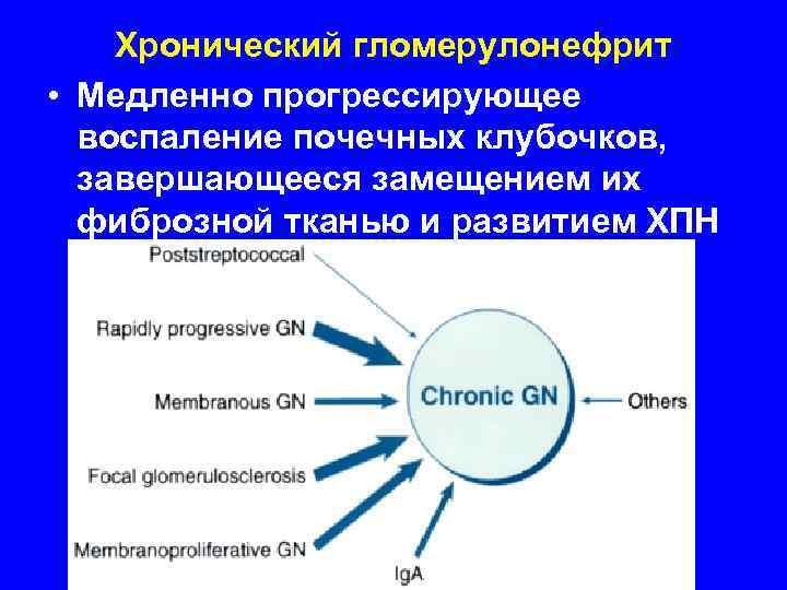 Хронический гломерулонефрит • Медленно прогрессирующее  воспаление почечных клубочков, завершающееся замещением их