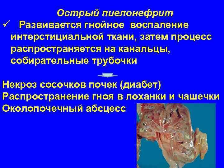 Острый пиелонефрит ü Развивается гнойное воспаление  интерстициальной ткани, затем процесс