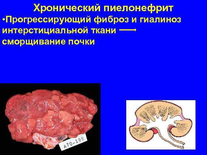 Хронический пиелонефрит • Прогрессирующий фиброз и гиалиноз интерстициальной ткани  сморщивание почки