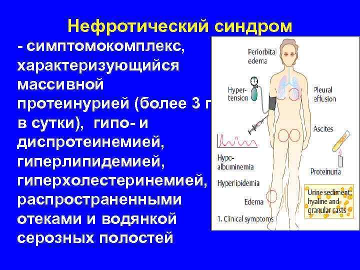 Нефротический синдром  - симптомокомплекс, характеризующийся массивной протеинурией (более 3 г в