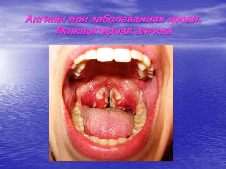 Ангины при заболеваниях крови.  Моноцитарная ангина