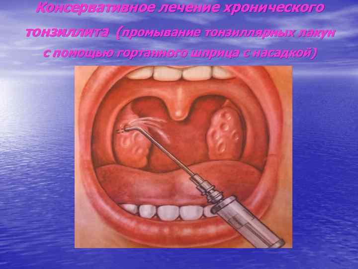 Консервативное лечение хронического тонзиллита (промывание тонзиллярных лакун  с помощью гортанного шприца с