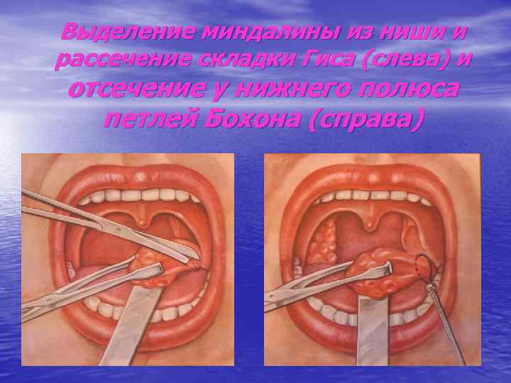 Выделение миндалины из ниши и рассечение складки Гиса (слева) и отсечение у нижнего полюса