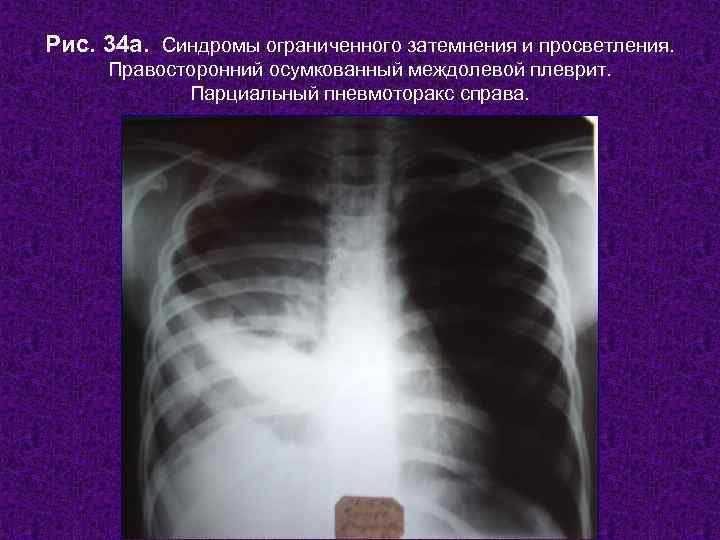 Рентгенологическим признаком плеврита что является осумкованного