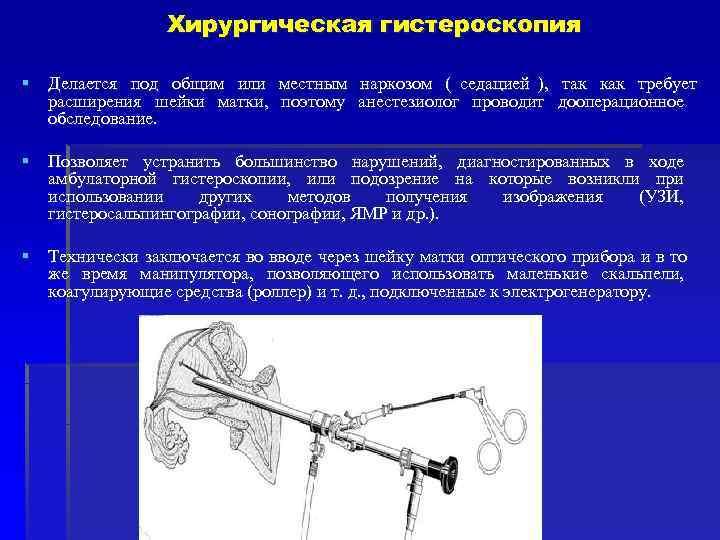 Хирургическая гистероскопия § Делается под общим или местным наркозом (