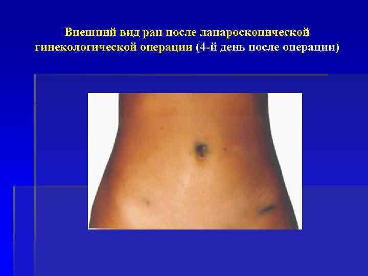 Внешний вид ран после лапароскопической гинекологической операции (4 -й день после операции)