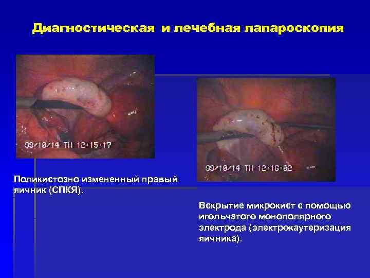 Диагностическая и лечебная лапароскопия Поликистозно измененный правый яичник (СПКЯ).