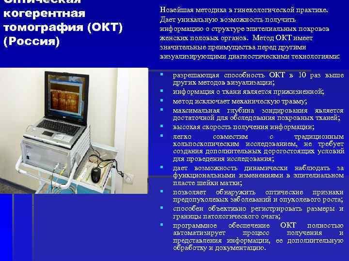 Оптическая когерентная  Новейшая методика в гинекологической практике.     Дает уникальную