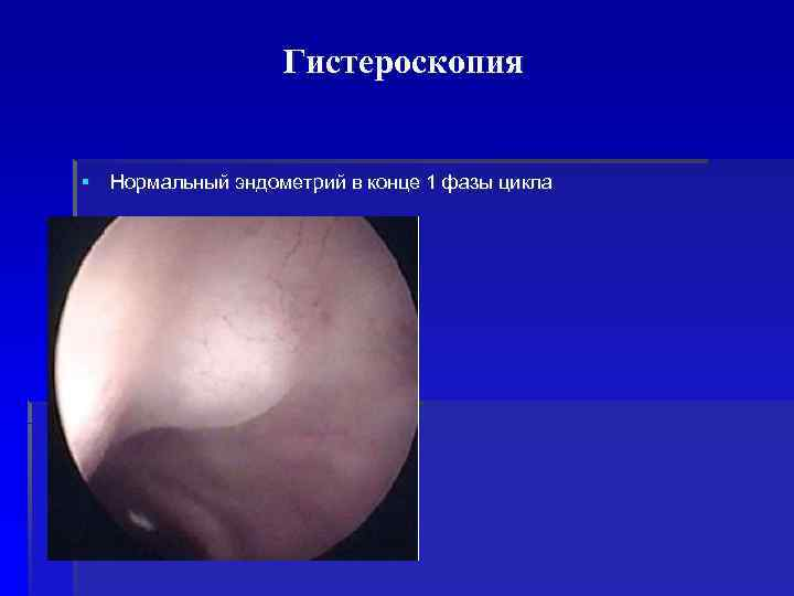 Гистероскопия  § Нормальный эндометрий в конце 1 фазы цикла