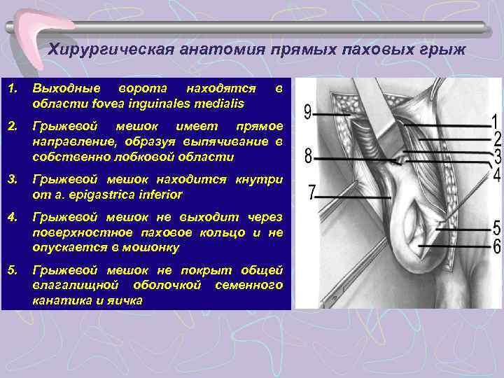 Хирургическая анатомия прямых паховых грыж 1.  Выходные ворота находятся  в
