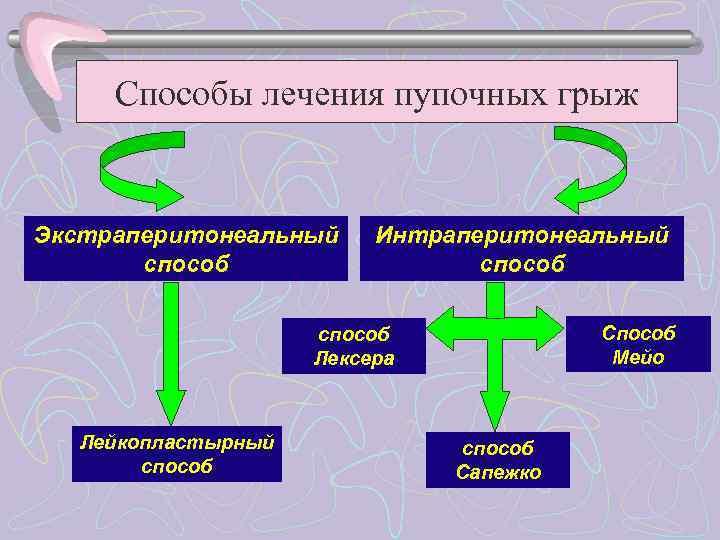 Способы лечения пупочных грыж  Экстраперитонеальный Интраперитонеальный  способ   Способ