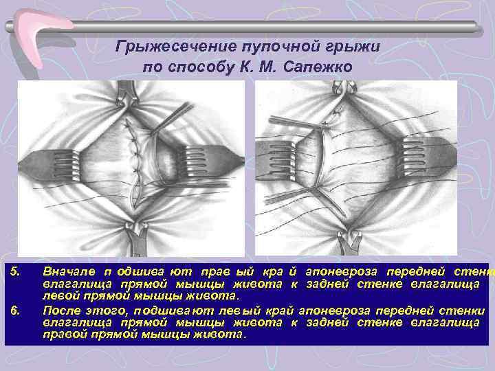 Грыжесечение пупочной грыжи   по способу К. М. Сапежко 5.