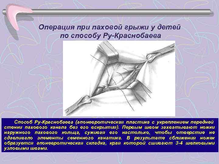 Операция при паховой грыжи у детей   по способу Ру-Краснобаева