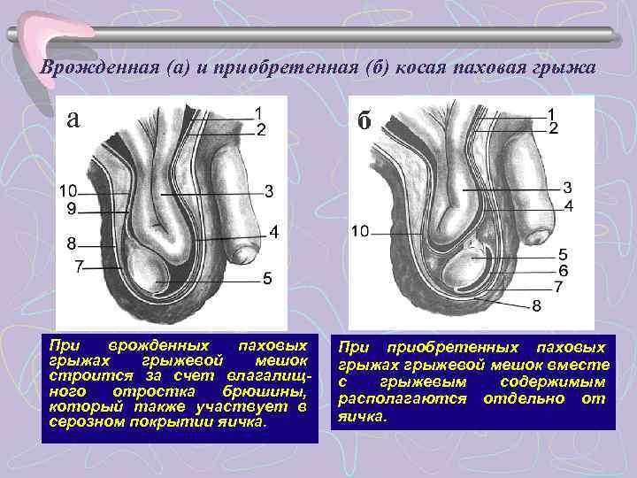 Врожденная (а) и приобретенная (б) косая паховая грыжа  а