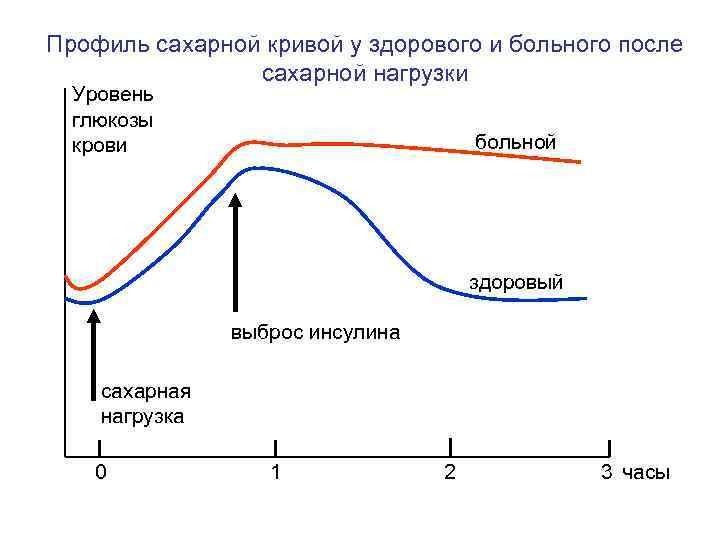 Профиль сахарной кривой у здорового и больного после   сахарной нагрузки  Уровень