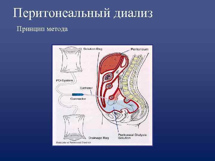 Перитонеальный диализ Принцип метода