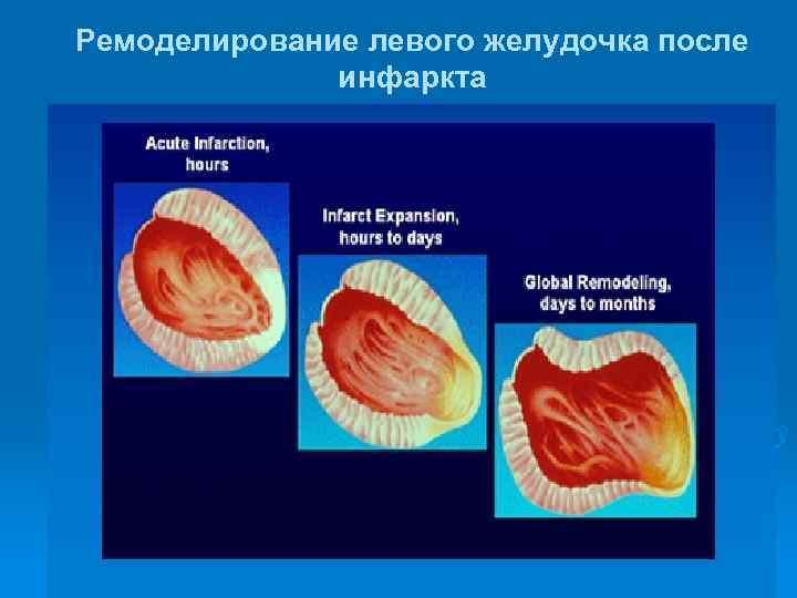 Ремоделирование левого желудочка после    инфаркта