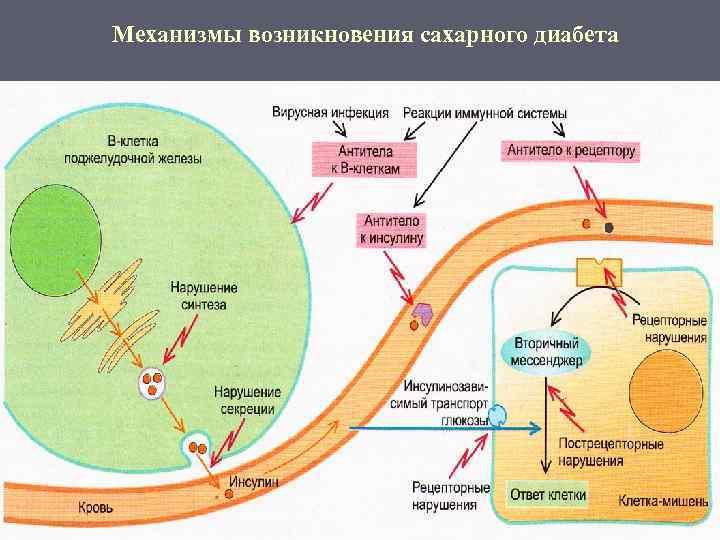 Механизмы возникновения сахарного диабета