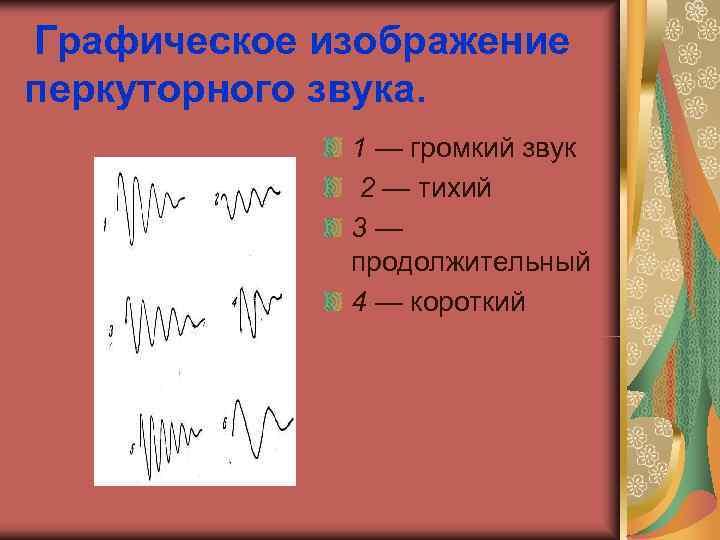 Графическое изображение перкуторного звука.    1 — громкий звук