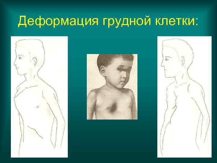 Деформация грудной клетки:
