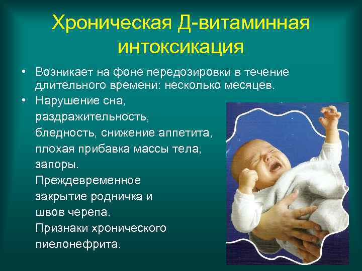 Хроническая Д-витаминная  интоксикация • Возникает на фоне передозировки в течение