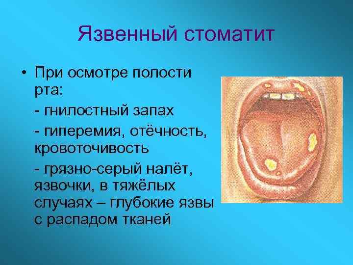 Язвенный стоматит • При осмотре полости  рта:  - гнилостный запах