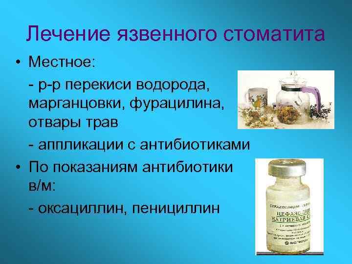 Лечение язвенного стоматита • Местное:  - р-р перекиси водорода,  марганцовки, фурацилина,