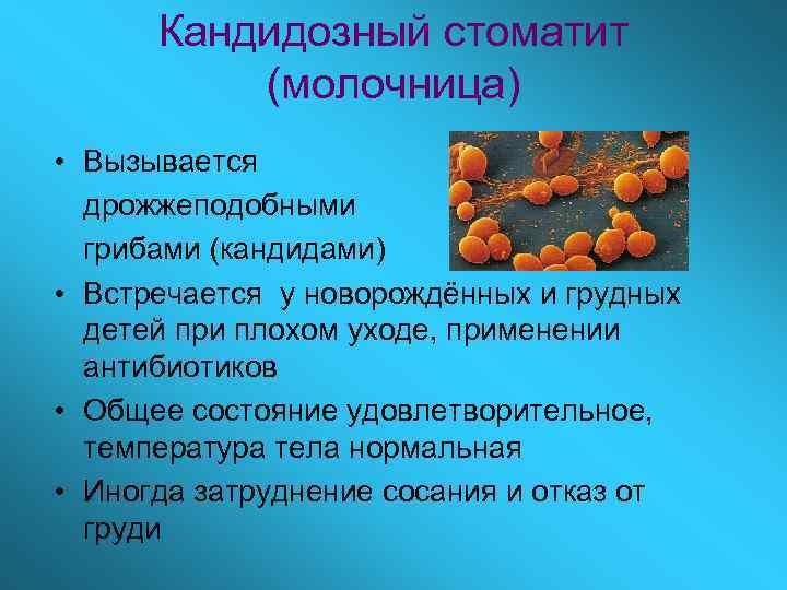 Кандидозный стоматит  (молочница) • Вызывается  дрожжеподобными  грибами (кандидами) • Встречается