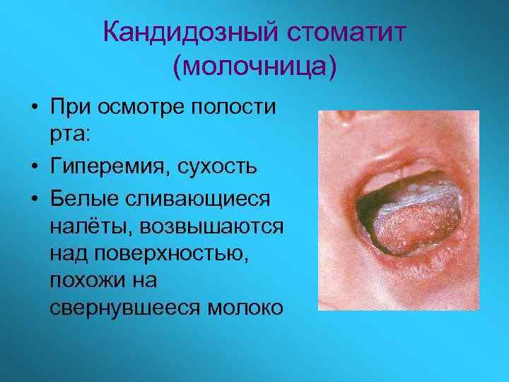 Кандидозный стоматит   (молочница) • При осмотре полости  рта:  •