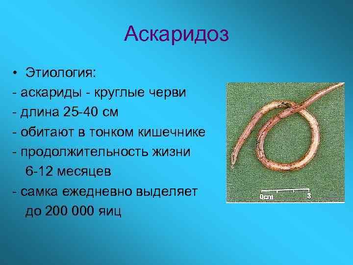 Аскаридоз • Этиология: - аскариды - круглые черви - длина