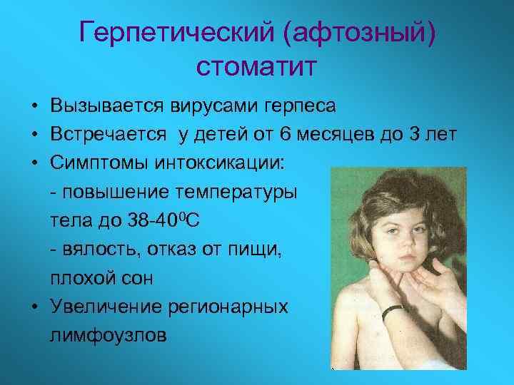 Герпетический (афтозный)   стоматит • Вызывается вирусами герпеса • Встречается у