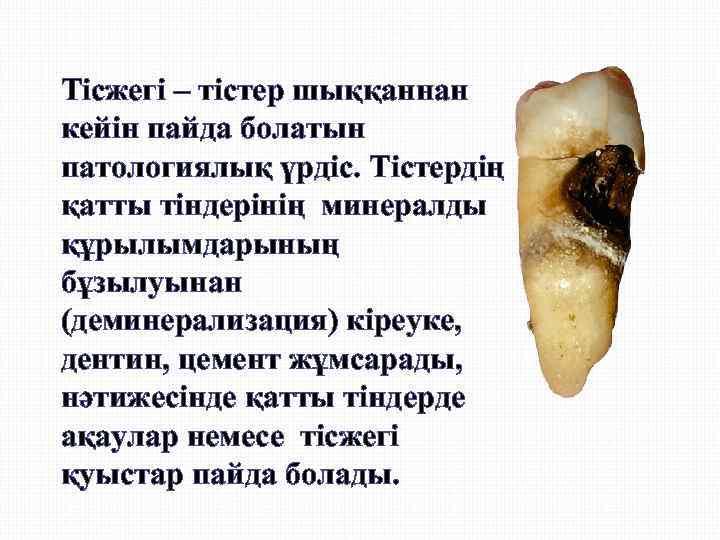 Тісжегі – тістер шыққаннан кейін пайда болатын патологиялық үрдіс. Тістердің қатты тіндерінің минералды құрылымдарының