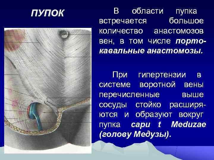 ПУПОК В  области пупка   встречается большое   количество анастомозов