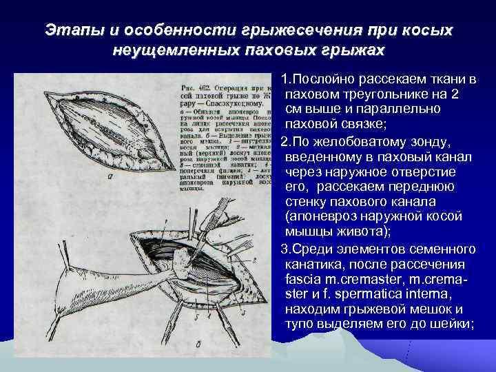 Этапы и особенности грыжесечения при косых  неущемленных паховых грыжах