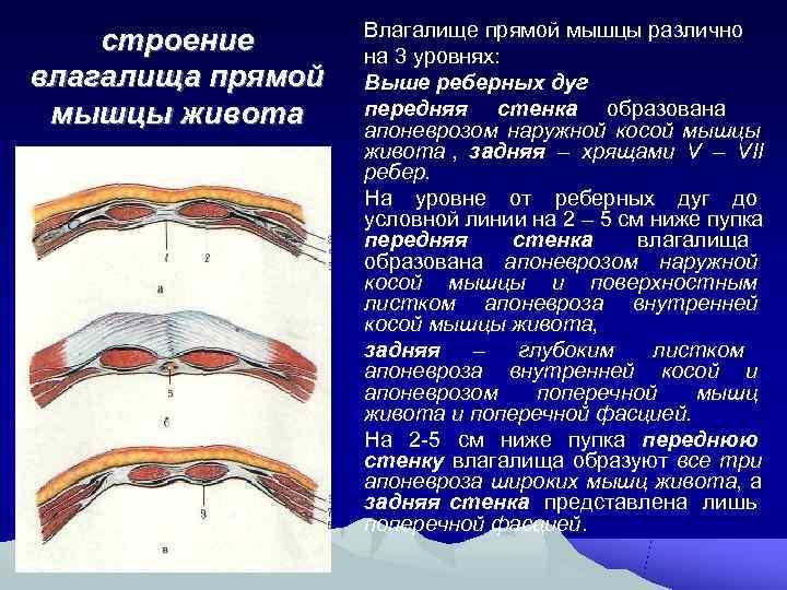 Влагалище прямой мышцы различно строение  на 3 уровнях: влагалища