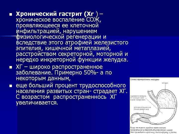 n  Хронический гастрит (Xг ) – хроническое воспаление СОЖ, проявляющееся ее клеточной инфильтрацией,
