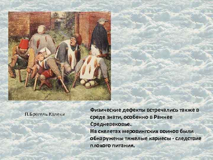 Физические дефекты встречались также в П. Брегель Калеки