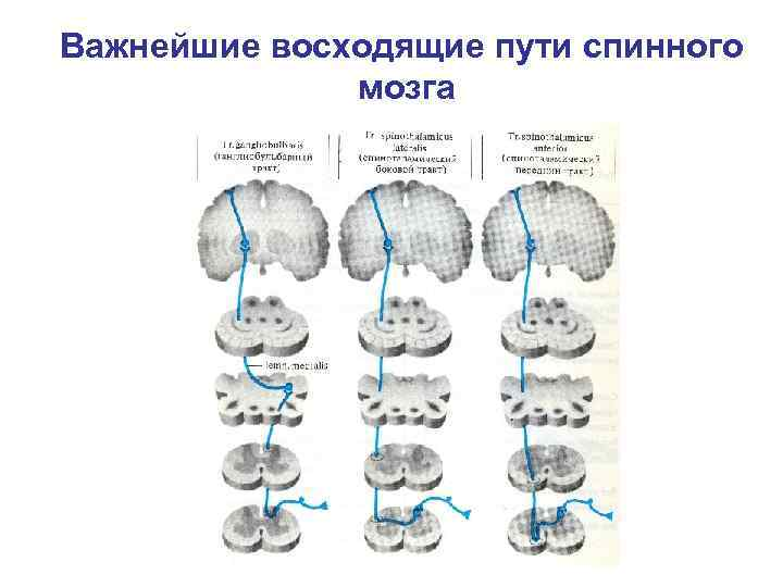 Важнейшие восходящие пути спинного    мозга