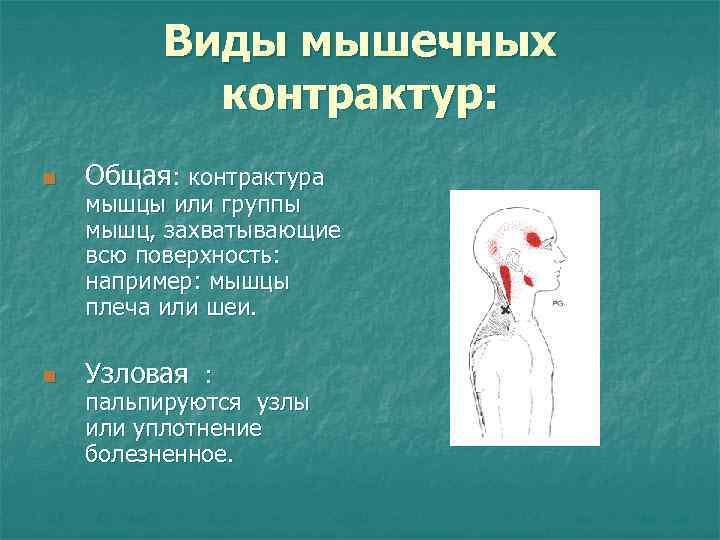 Виды мышечных  контрактур: n  Общая: контрактура мышцы или группы