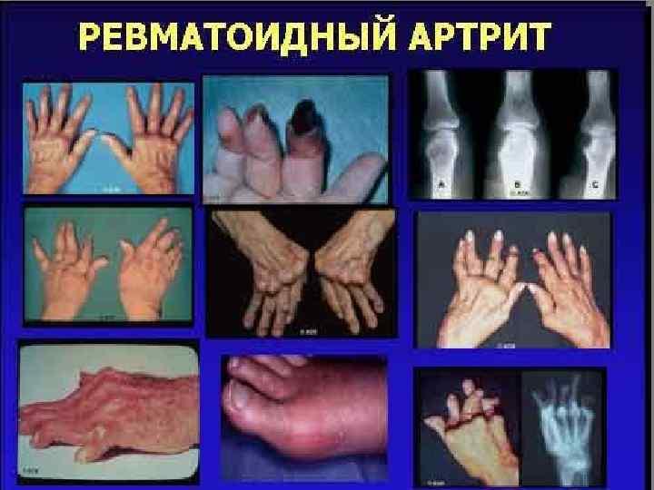 Ревматоидный артрит симптомы лечение диагностика диета