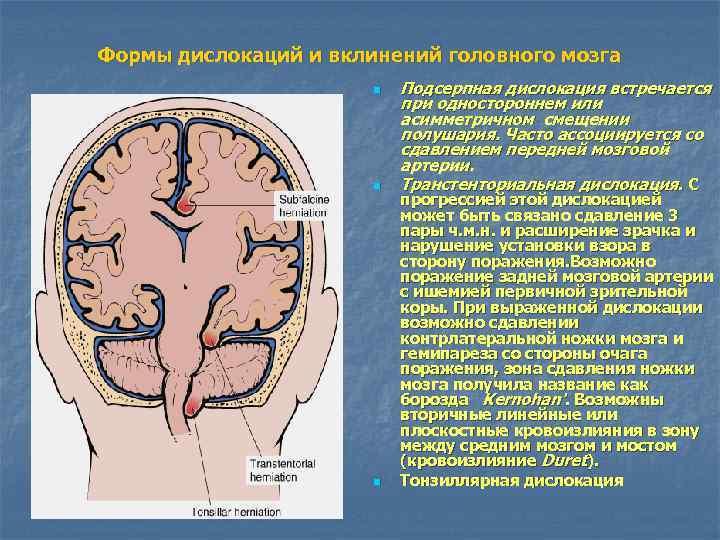Формы дислокаций и вклинений головного мозга    n  Подсерпная дислокация встречается