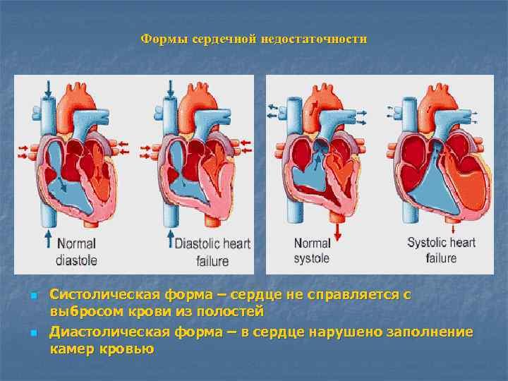 Формы сердечной недостаточности n  Систолическая форма – сердце не справляется