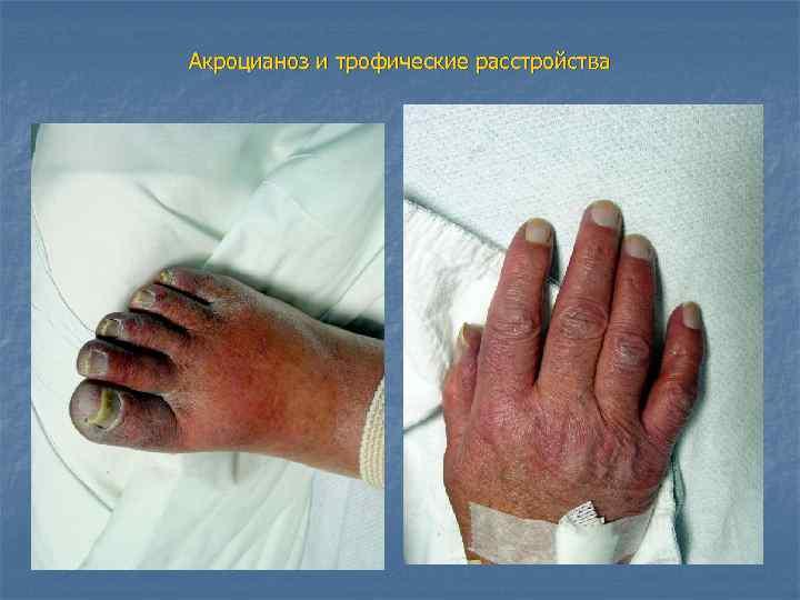 Акроцианоз и трофические расстройства